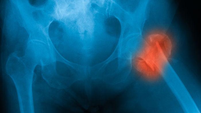 Knochenbrüche könnten Risiko für chronische Schmerzen erhöhen – BVOU ...
